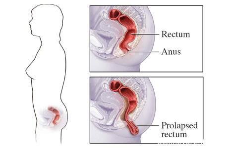 Что такое пролапс прямой кишки. Симтомы и лечение