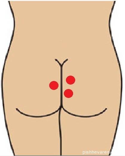 Свищ прямой кишки: симптомы, причины появления и лечение