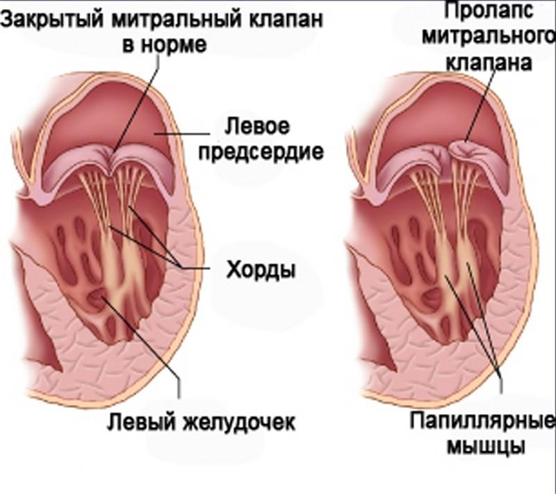 Дополнительная хорда левого желудочка у ребенка
