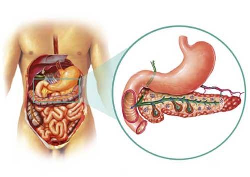 Как проявляется и лечится панкреонекроз поджелудочной железы?