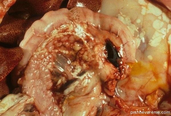 Некроз поджелудочной железы, насколько опасна эта ситуация?