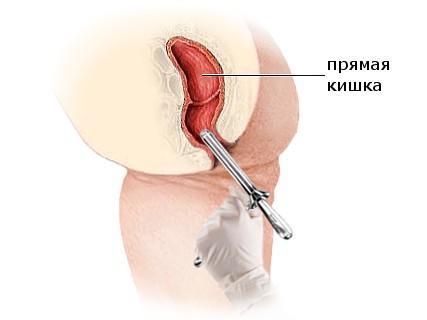Аноскопия как метод диагностики, особенности процедуры
