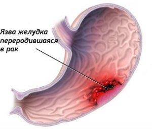 Метастазы в печени лечение в израиле