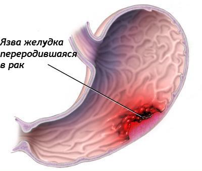 Как не пропустить симптомы рака желудка? Это важно!