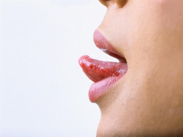 Рак языка: симптомы, причины, лечение