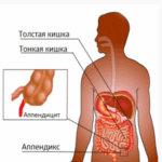 С какой стороны аппендицит находится и как проявляется его воспаление?