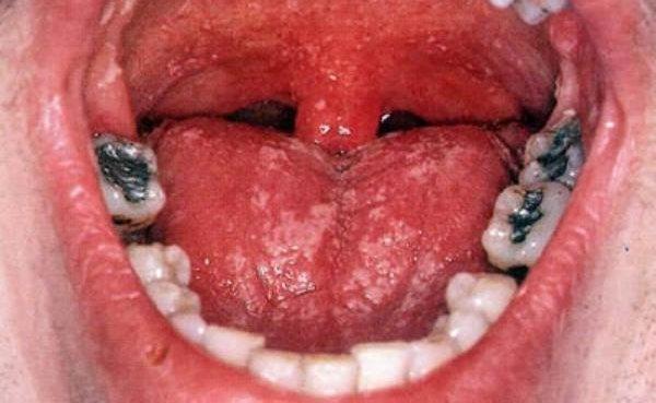 Грибок в горле симптомы и лечение у детей