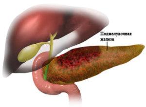 Панкреатит - это воспаление поджелудочной железы
