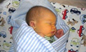Недоношенные дети часто страдают желтухой