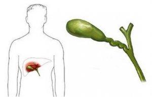 Желчный пузырь: схематическое изображение размещения органа