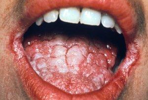 Папилломы на лице: причины, удаление, лечение