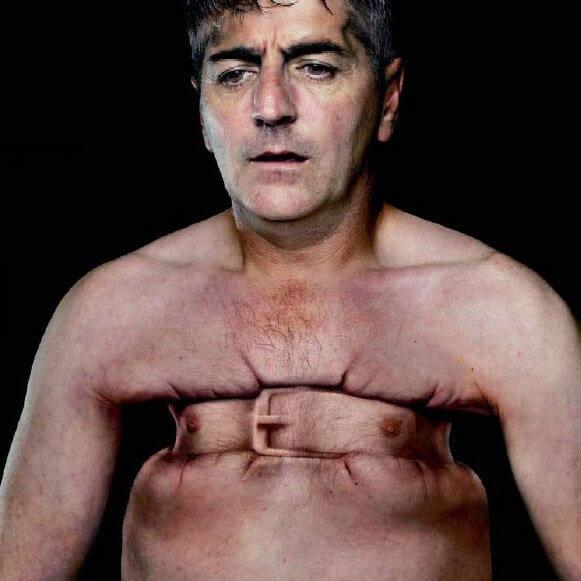 Как лечится атония желудка? Течение болезни