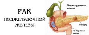Двенадцатиперстная кишка также страдает при повреждении поджелудочной.