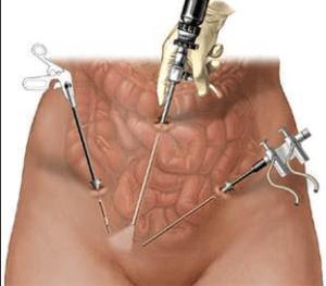 Операция происходит через небольшие надрезы