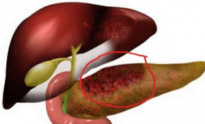 Панкреонекроз - отмирание клеток поджелудочной железы