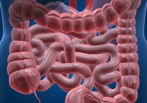 Проблемы с кишечником - острый запор
