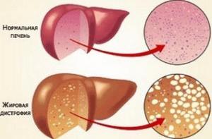 Схема нормальной печени и стеатозной
