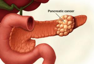 Схема раковой опухоли в поджелудочной железе