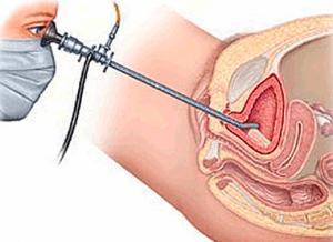 Цистоскопия - исследование мочевого пузыря