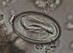 Яйцо желудочного гельминта