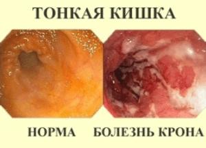 Заболевание тонкой кишки