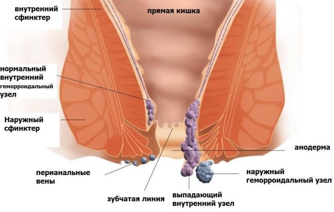 analniy-trah-russkoe-domashnee