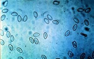 анализ кала на энтеробиоз