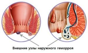 Наружные геморроидальные узлы лечение