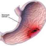 Каллезная язва: симптомы, причины и диета — как лечение заболевания