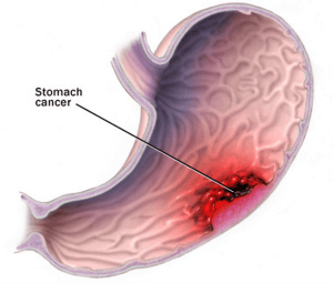Реферат Рак желудка Когда заметил что через месяца они принесли очень слабые результаты сперва огорчился Подумал