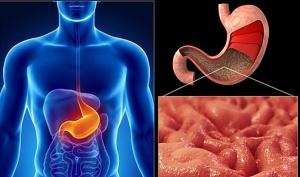 Воспаление слизистой оболочки желудка