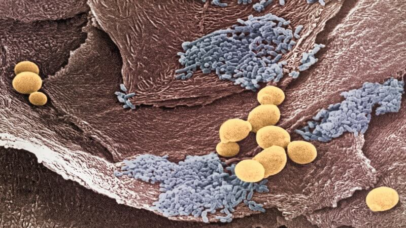Грибок внутри организма симптомы и лечение