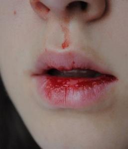 Кровь изо рта