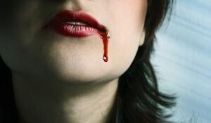 Порвали идет кровь фото 187-222