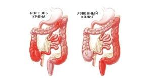 Признаки колита кишечника