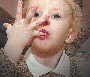 Виды глистов у детей