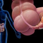 Как узнать что у тебя аппендицит: методы диагностирования аппендицита