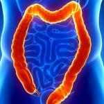 Энтерит, колит, дуоденит: как лечить воспаление кишечника