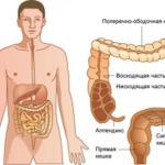 Сигмовидная кишка: боль в сигмовидной кишке, причины заболевания, лечение