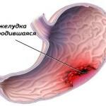 Полезная информация: продукты, снижающие кислотность желудочного сока