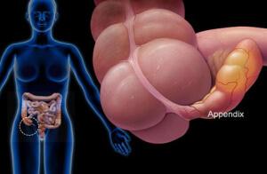 Причины возникновения аппендицита