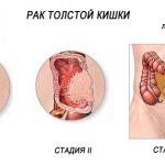Анастомоз кишечника: особенности, подготовка, назначение