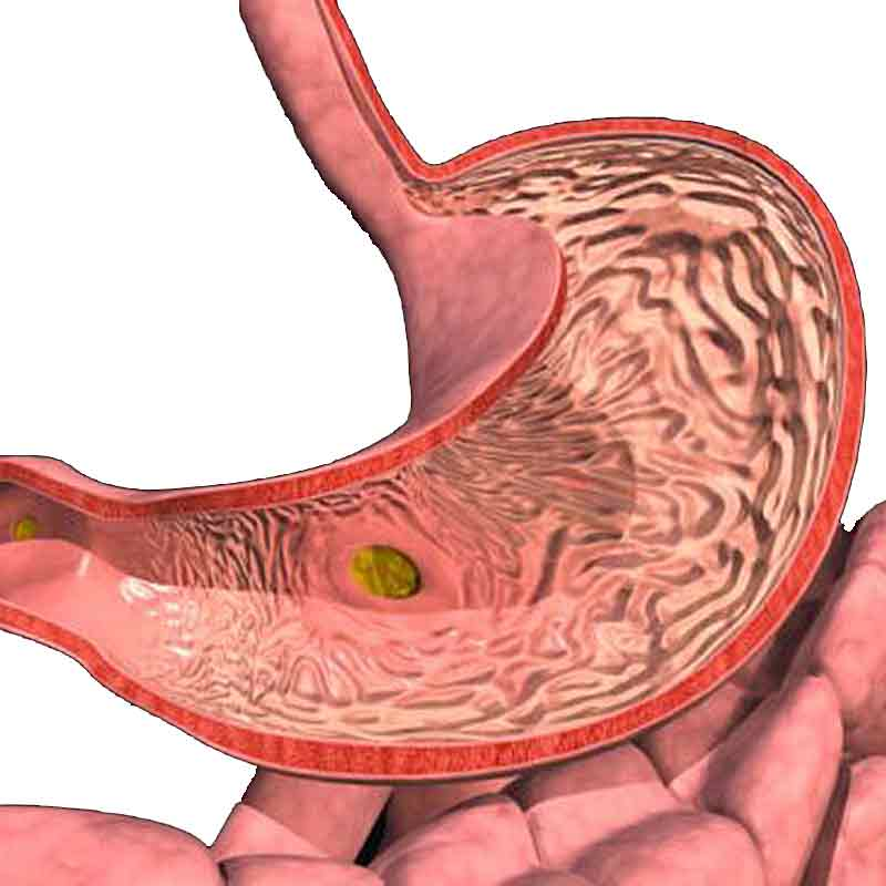 Симптомы больного желудка: правильное определение заболеваний органа