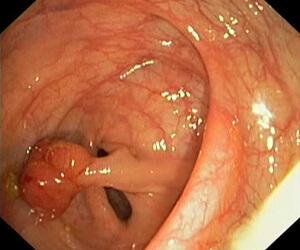 Проверка кишечника
