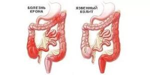 Дефекация со слизью и кровью