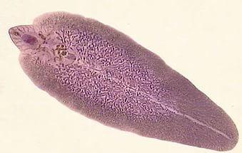 Лечение паразитов у детей – виды гельминтов, особенности симптоматики, меры профилактики