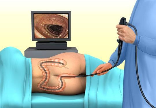 Подготовка к диагностике ЖКТ – что можно есть перед колоноскопией