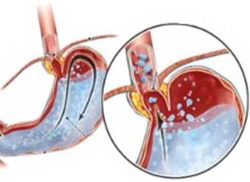 Чем опасен гастрит с повышенной кислотностью: симптомы, причины возникновения