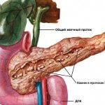 Хронический билиарный панкреатит: насколько опасным является заболевание
