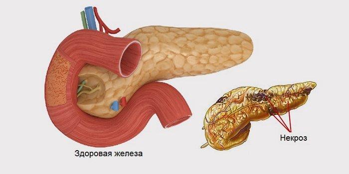 Некроз поджелудочной железы: прогноз и лечебная тактика